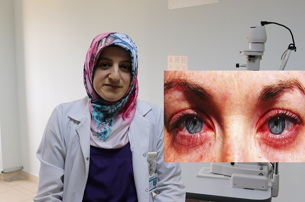 'Kızarık göz' ciddi sorunlara yol açabilir!