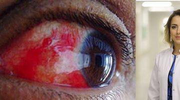 Tatilciler Göz Sağlığınıza Dikkat!