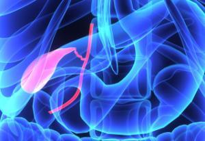 Safra kesesi taşında kanser riski