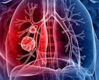 """Sinsi bir hastalık """"akciğer kanseri"""""""